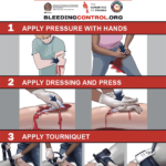 Edumed-ems - Curso Control de Hemorragias