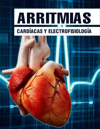 Arritmias Cardiacas - Curso Elearning